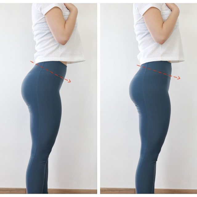 anterior pelvic tilt compariosn before and after